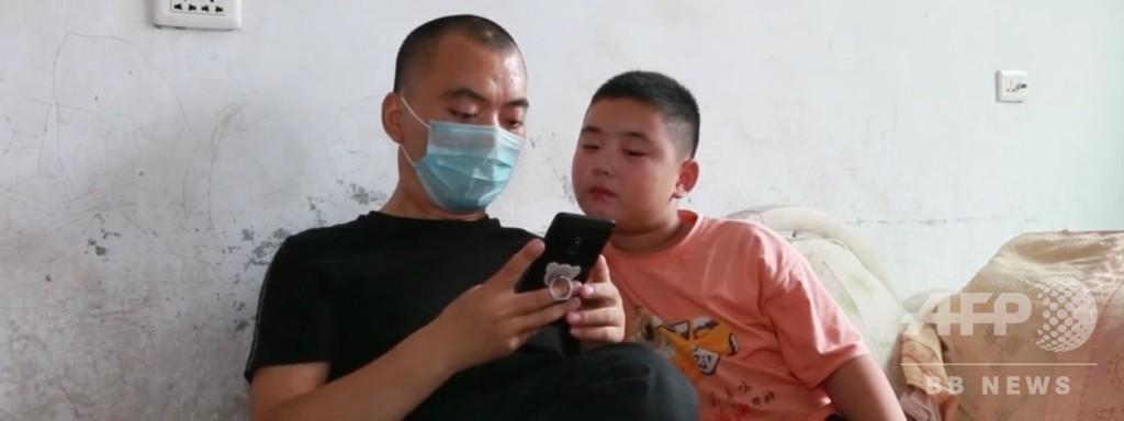 父の骨髄移植のため…4か月で20キロ太った11歳少年