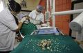 17歳少年から計232本の「歯」を摘出、インド