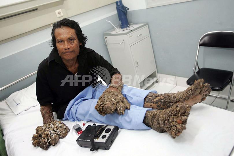 インドネシアの「樹木男」、9回目の手術 イボの成長止まらず