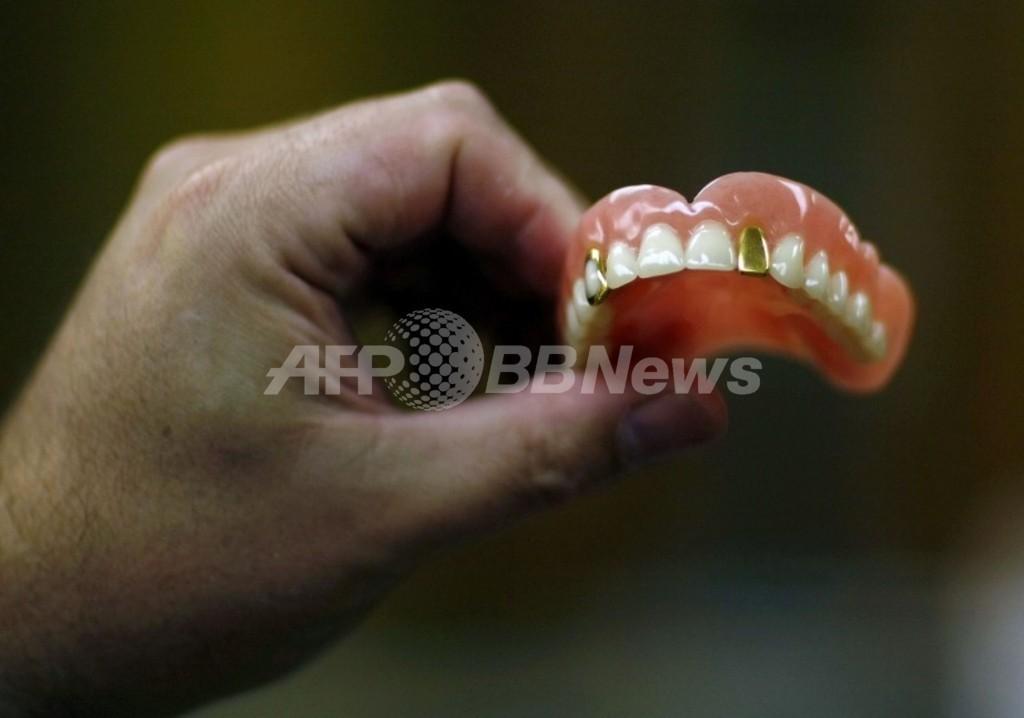 ブラジルのひったくり、入れ歯を落として御用