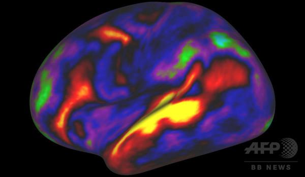 脳の「最も詳細な地図」作製、研究