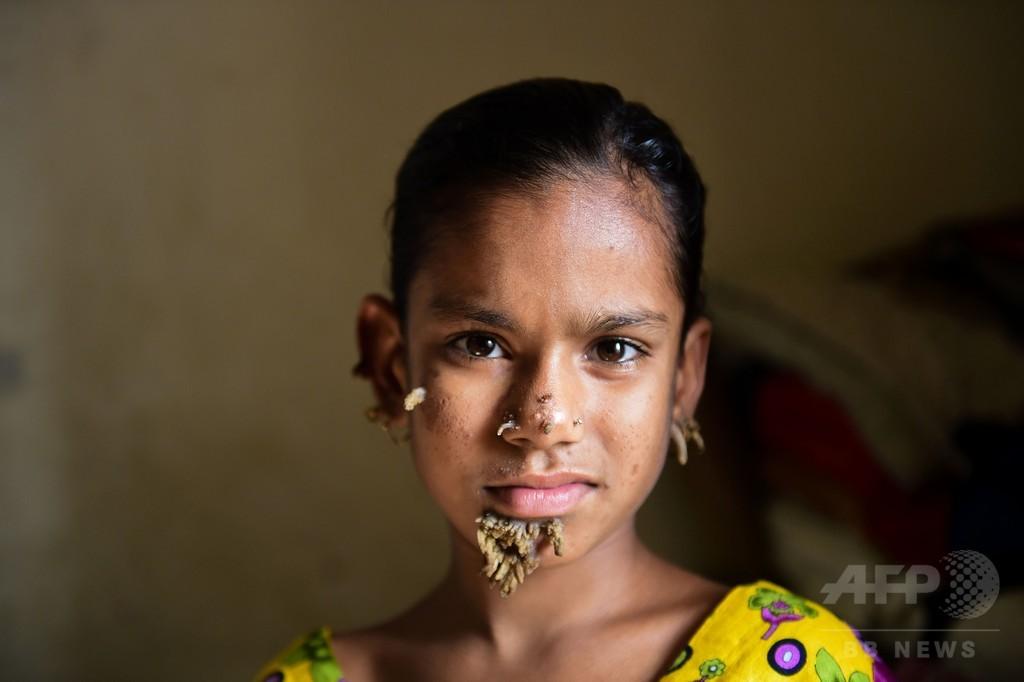樹木男症候群の少女 「治らないかも」と父親危惧、治療続行を拒否
