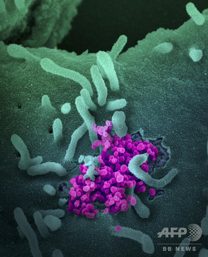 下水で新型ウイルス追跡、貴重な早期警報システムとなり得るか