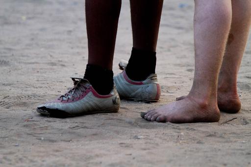 タンザニアでアルビノの遺体掘り起こし、人々を「恐怖に」と自助団体