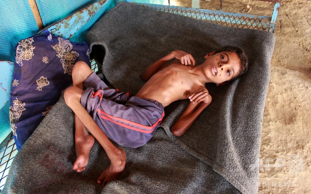 イエメンで1000万人以上が深刻な食糧不足、人道危機が急激に悪化 WFP