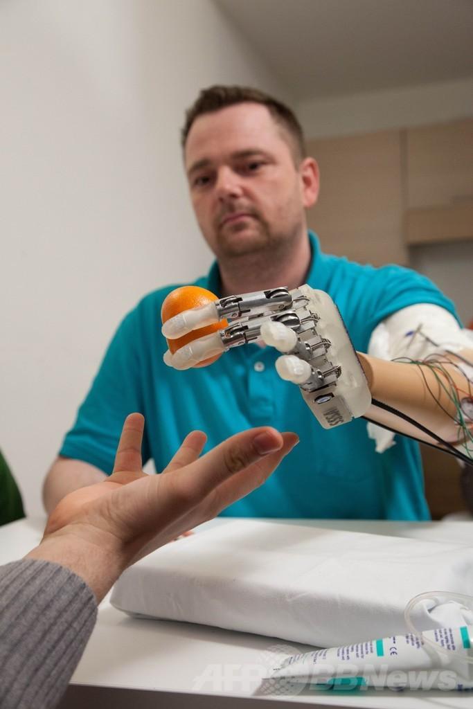 触感と形を伝える「バイオニック・ハンド」、欧州チームが開発