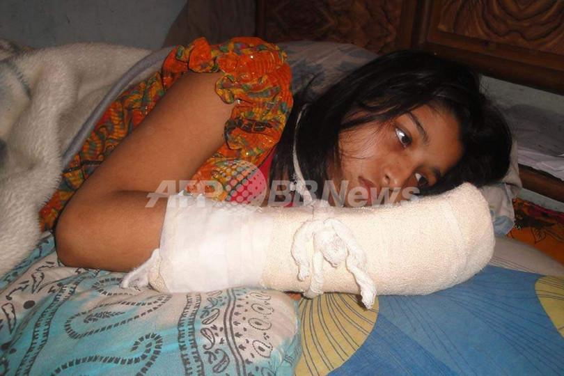 大学での学位目指した妻の指を夫が切断、バングラデシュ