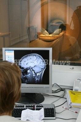 脳の活動阻害で道徳的判断に異常、米研究