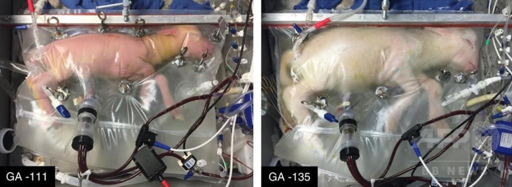 超未熟児向け人工子宮、ヒツジ胎児が正常発育 米研究