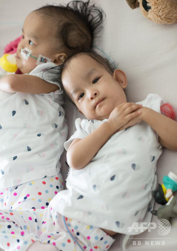 ブータンの結合双生児、分離手術から6日たつも「常に一緒」