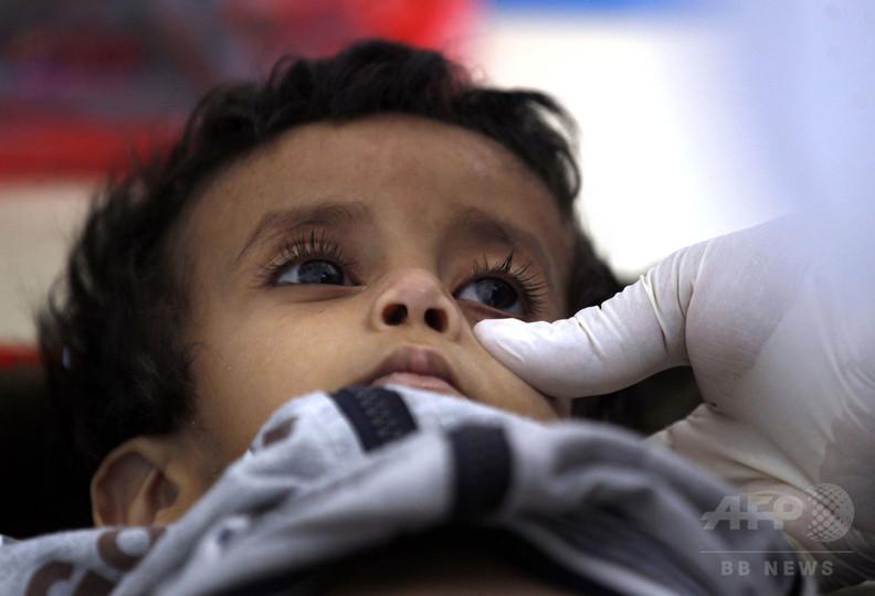 イエメンのコレラ流行、感染疑い10万人超 死者789人に WHO