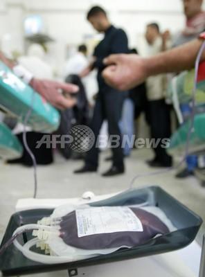 世界初、肝臓移植後に血液型変わる