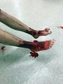 海に漬かって血だらけに、足に原因不明の無数の穴 オーストラリア