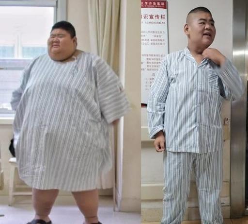 1年で200キロの減量に成功! 山東省の20歳男性