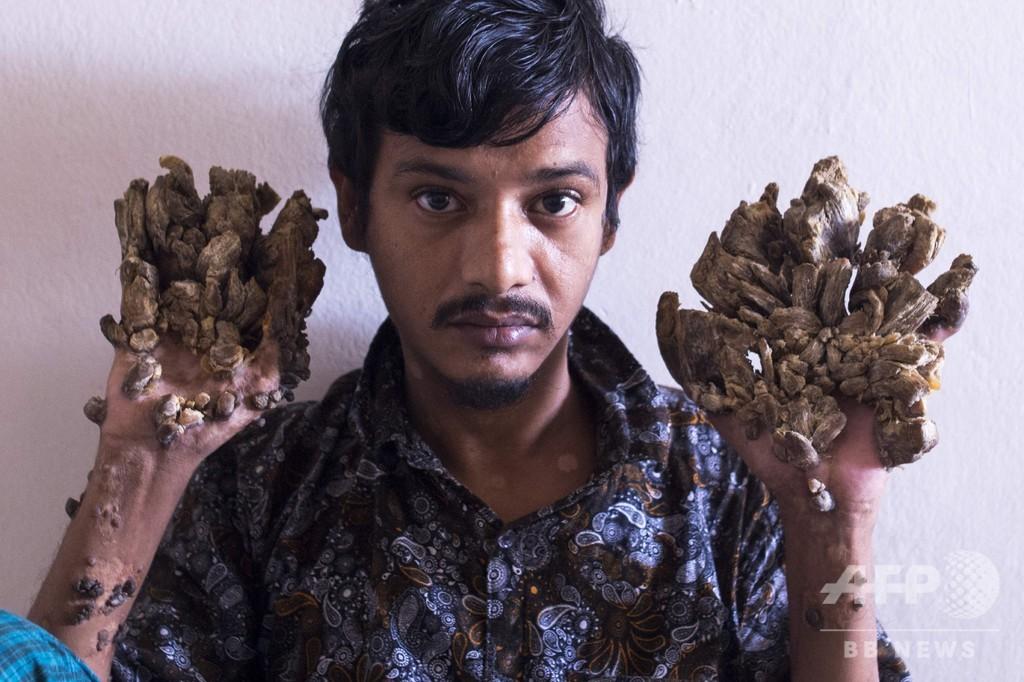バングラデシュの「樹木男」、両手切断を希望 耐え難い痛み訴え