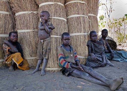 ウガンダの子供たちを襲う謎の奇病「うなずき病」、原因も治療法も不明