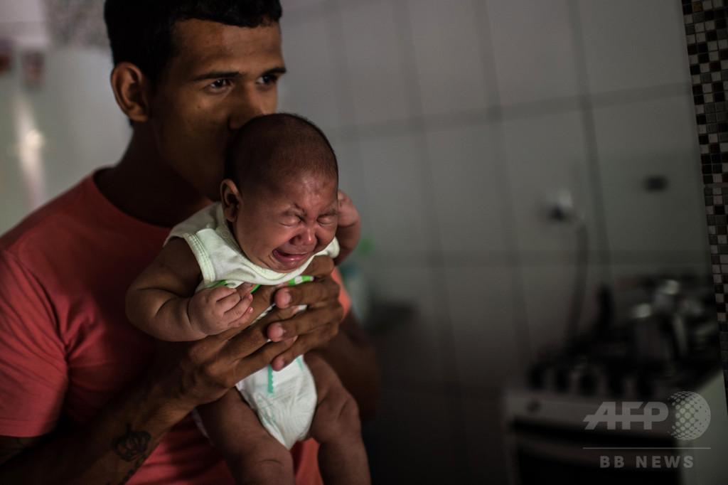 小頭症の新生児1271人に、57人が死亡 ブラジル