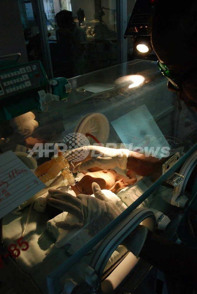 国際ニュース:AFPBB News交通事故で妊婦が死亡、胎児は助かる 米ニューヨーク