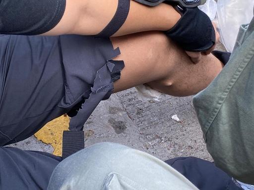 香港デモ隊が放った矢、警官のふくらはぎに刺さる 警察発表