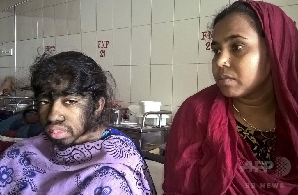 「おおかみ男症候群」の娘に支援を、家族が訴え バングラデシュ