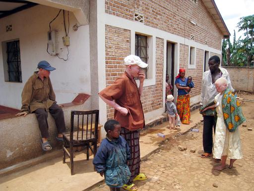 タンザニアでまたもアルビノ殺害事件、女子小学生が犠牲に