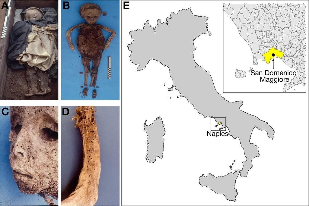 イタリアの子どものミイラ、天然痘でなく肝炎に感染 DNA分析で判明