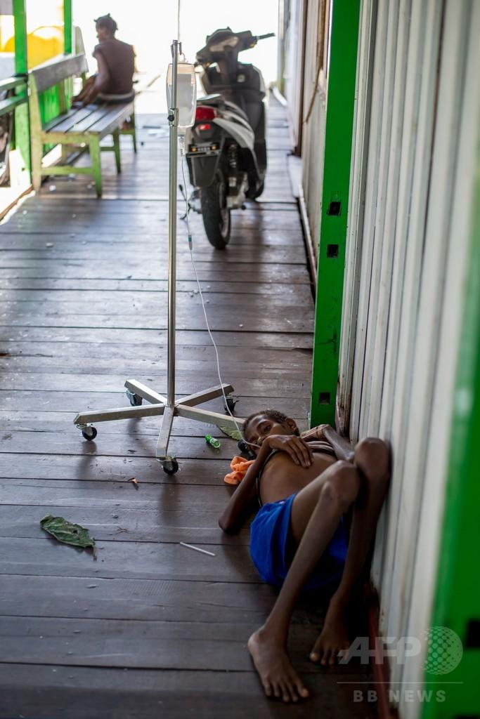 子ども800人が麻疹や栄養失調、100人死亡か インドネシア・パプア州