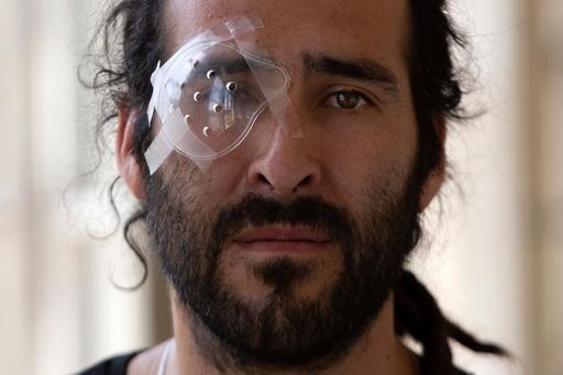 チリ反政府デモ、警察のゴム弾などで200人が目を負傷 失明した人も
