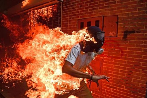 世界報道写真大賞に「燃える男」 AFPカメラマン撮影
