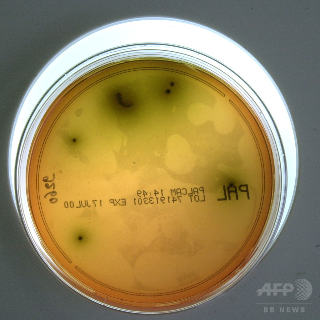 南アフリカのリステリア感染、死者200人以上に 史上最悪の被害