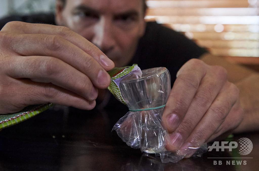 ヘビ毒を注射する男、新たな解毒剤開発の希望に【再掲】