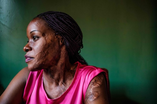 骨に届くまで溶ける痛み─裁きを求める酸攻撃の被害者たち ウガンダ