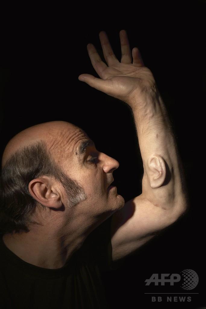 豪アーティスト、腕に埋め込んだ「耳」をネットに接続