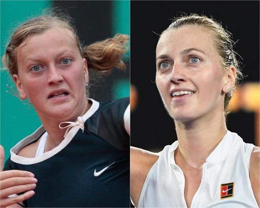 【写真特集】女子テニス選手のビフォーアフター