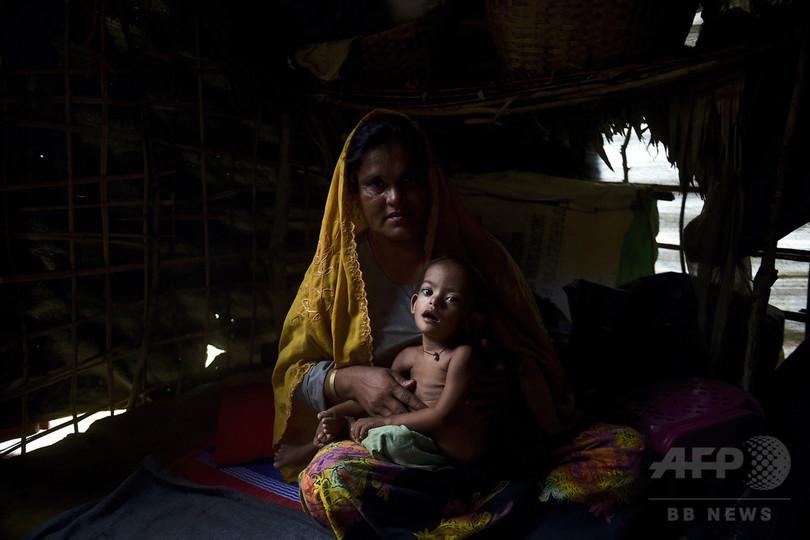 ロヒンギャ難民の子供、4分の1が栄養失調で命の危機 ユニセフ