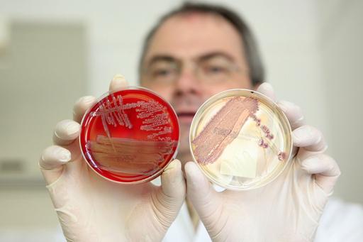 大腸菌感染、もやしが原因との見方 州当局