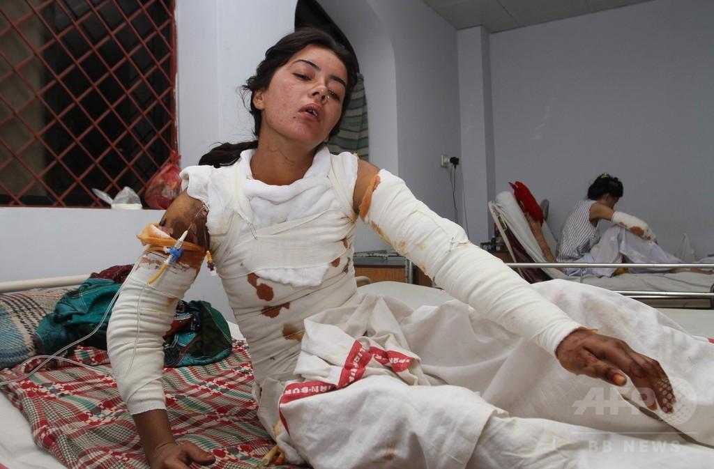 「求婚断り火付けられた」女性が死亡、パキスタン
