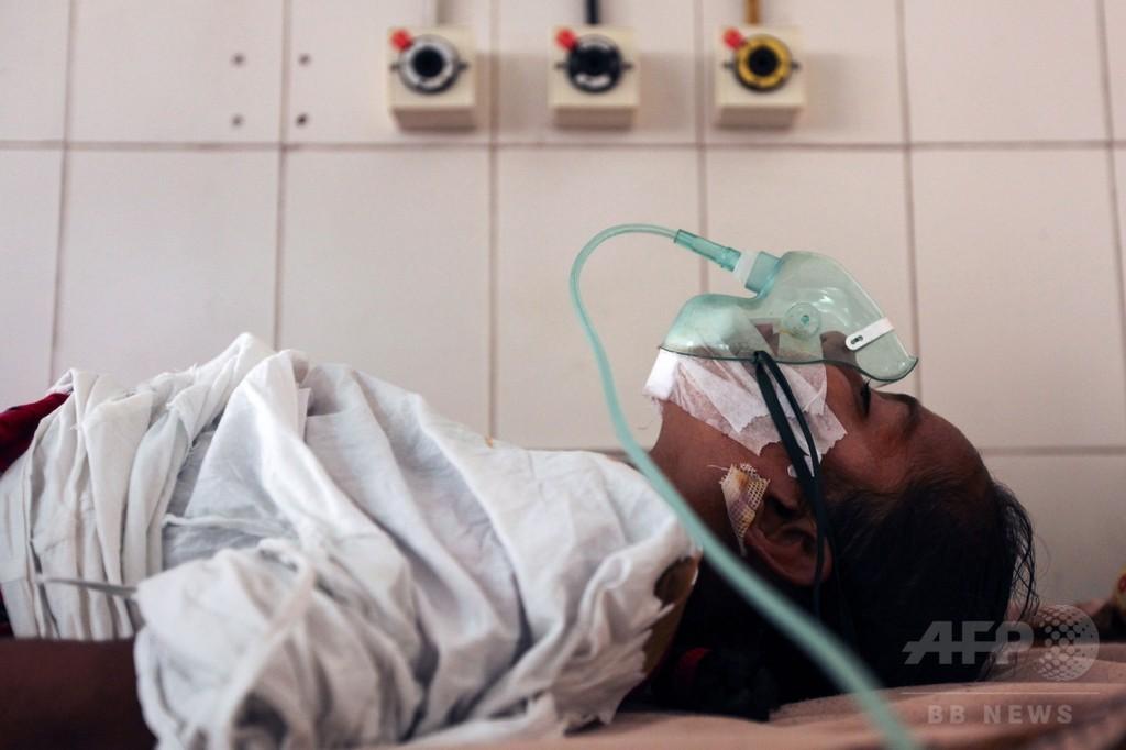 「樹木男症候群」発症とみられる少女、イボ除去手術成功 バングラ