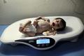 シリア封鎖地域、子供1100人超が栄養失調 ユニセフ