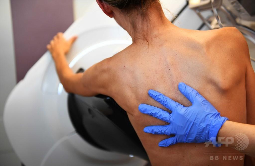 「タトゥー」でがん検出、実験的技術を開発 スイス研究