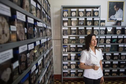 脳コレクションの世界へようこそ、ペルー「脳博物館」
