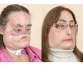 米国初の顔面移植の女