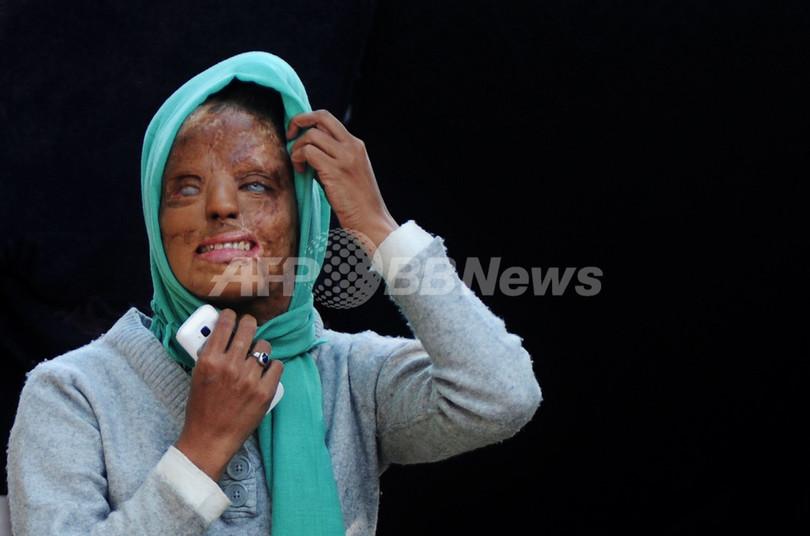 酸で顔を失ったインド女性、決意のクイズ番組出演