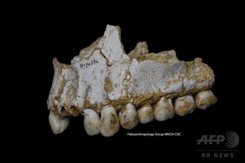 ネアンデルタール人、歯痛に「鎮痛薬」使用か 研究