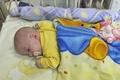超低出生体重児に透析治療、世界で初成功 ポーランド