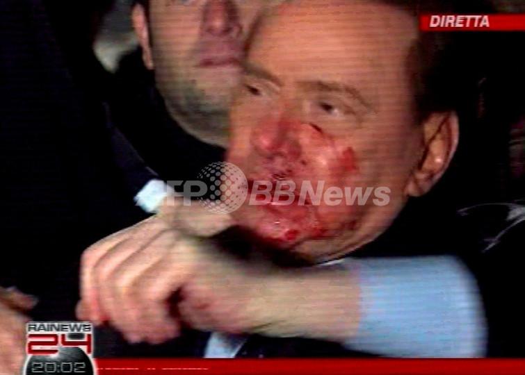 ベルルスコーニ伊首相、男に襲われ顔面から出血