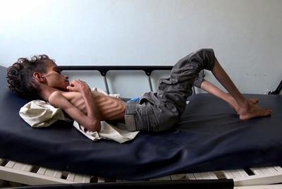 内戦のイエメン、約2000万人が深刻な食料不足 総人口の約67%
