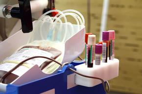病原菌を磁石で除去する装置開発、エボラ治療にも応用期待 研究
