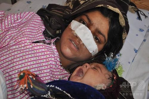 激高夫、妻の鼻そぎ落とす アフガンで怒り沸騰