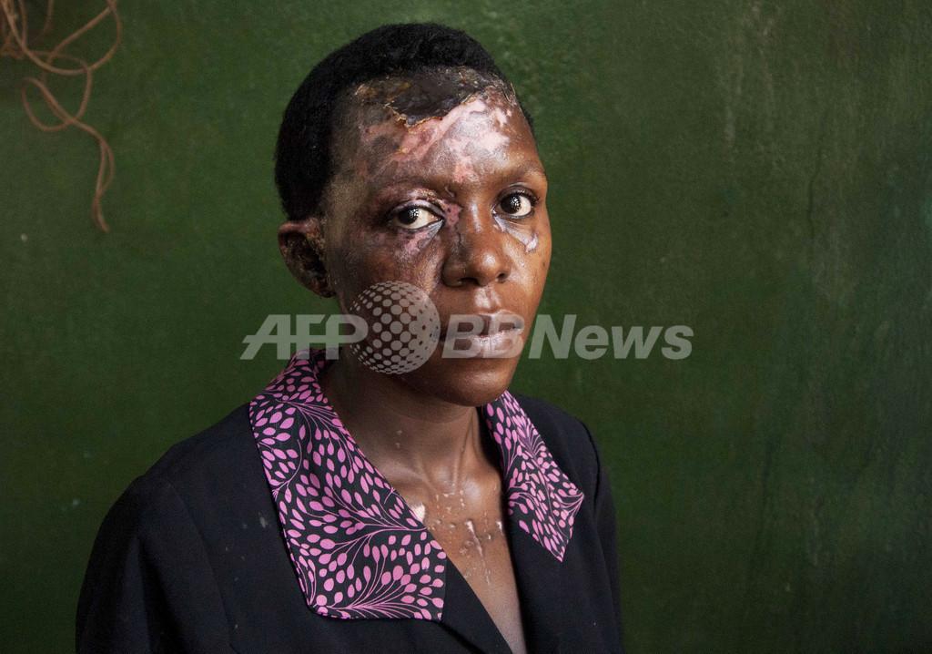 「硫酸による復讐」が急増、遠い法整備 ウガンダ